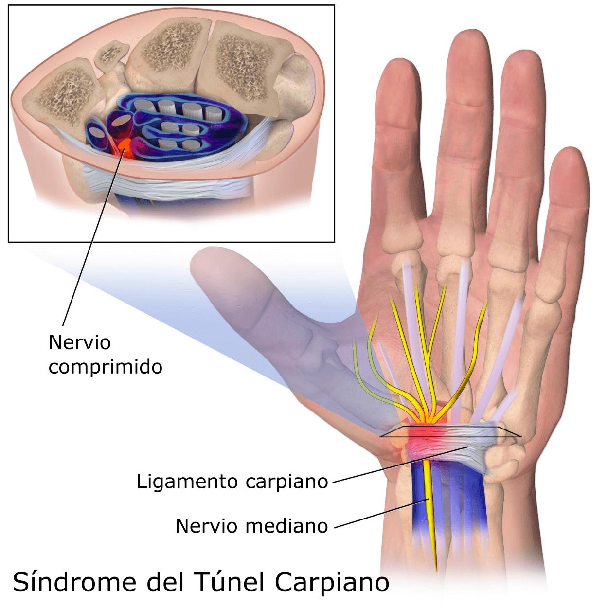 Síndrome Túnel carpiano