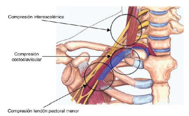 Desfiladeros nervio mediano