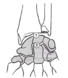 Articulaciones carpo muñeca