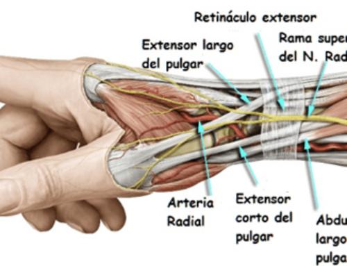 (Español) Novedades en el Tratamiento de la Rizartrosis de Pulgar según Kristin Valdes