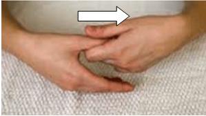tratamiento pulgar carpo