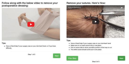 App Telerrehabilitación post- cirugía
